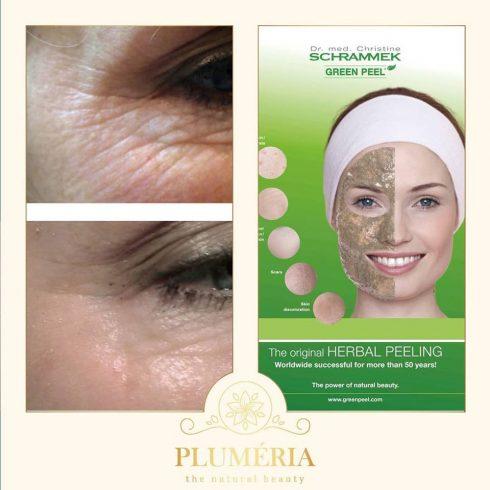 Női arctisztítás + Green Peel Fresh-up kezelés